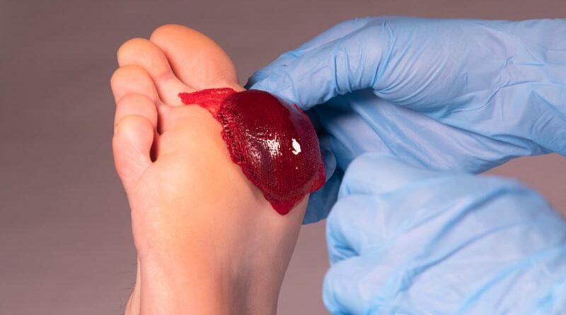 mecanismo do corpo para curar feridas